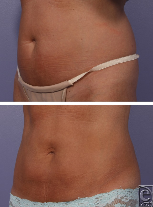 Cryolipolysis case